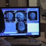 Imágenes cerebro humano -Nuestro Cuerpo